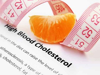 Is Your Cholesterol Under <strong>Control</strong>