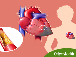 What are the Types of <strong>Coronary</strong> <strong>Artery</strong> <strong>Bypass</strong> <strong>Grafting</strong>?
