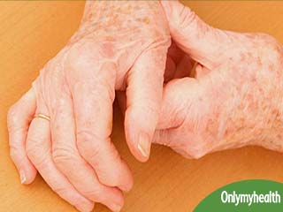 An Overview of Arthritis