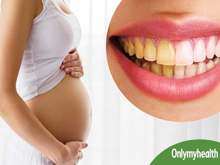 <strong>Teeth</strong> Discoloration during Pregnancy: Causes and Treatment