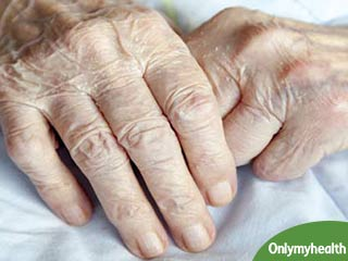Strangest Arthritis Remedies you Would Never Have Heard about