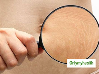 Ayurvedic Remedies to <strong>Get</strong> <strong>Rid</strong> of Stretch Marks