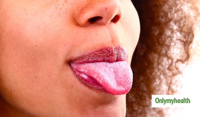 Know what your tongue says about your health