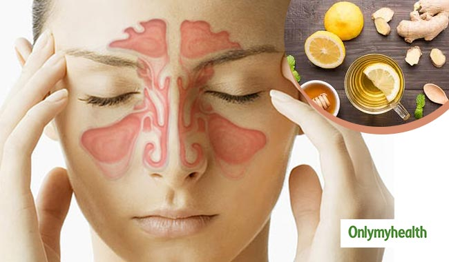 Remedies to Cure Sinus Infection