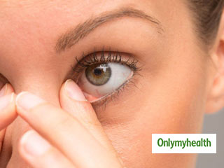 Common Eye Problems: Know <strong>Causes</strong>, <strong>Symptoms</strong> and <strong>Treatment</strong>