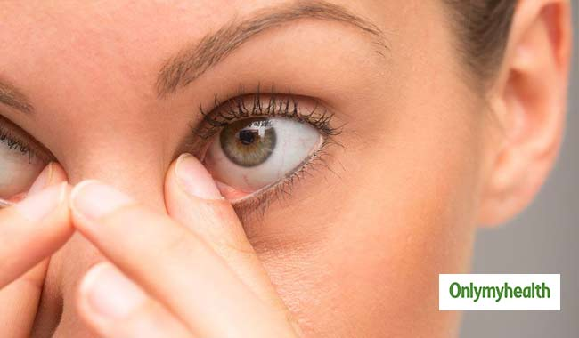 Common Eye Problems: Know Causes, Symptoms and Treatment