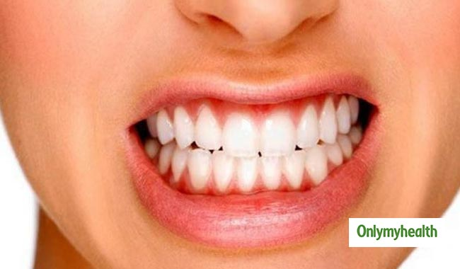 What is Bruxism? Know Symptoms, Causes and Treatments