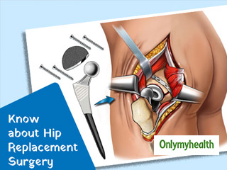Faulty Hip Replacement Conflict: Know What is Hip Replacement Surgery and its Treatment