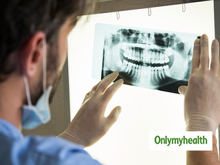 Are Dental X-Rays safe? <strong>Know</strong> some unusual <strong>facts</strong>