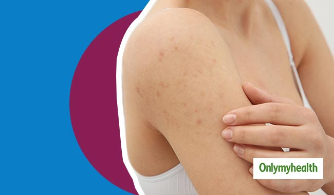 7 Effective Ways to Get Rid of Back and Shoulder Acne