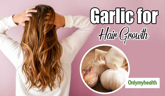 Garlic for Hair Growth: Learn Ways to Use Garlic for Hair Growth