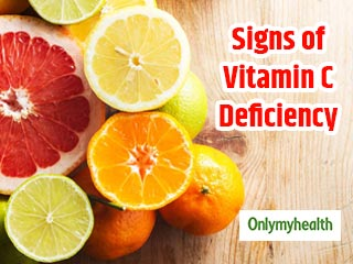 Vitamin C Deficiency: Signs and Symptoms You Must Know