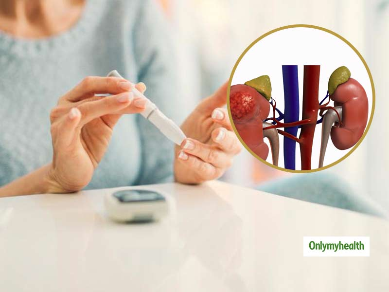 Diabetes can cause Kidney Failure: Know the symptoms