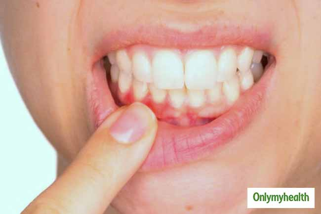 #Home Remedies To Treat Swollen Gums