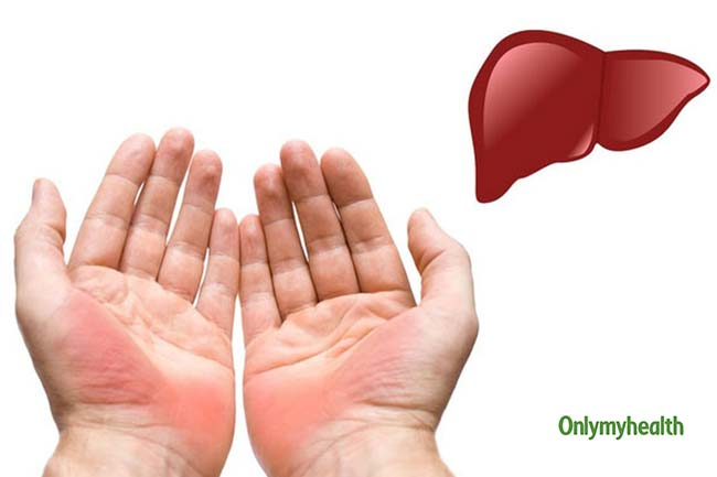 #World Liver Day 2019: 5 Signs of an Unhealthy Liver You Should not Ignore