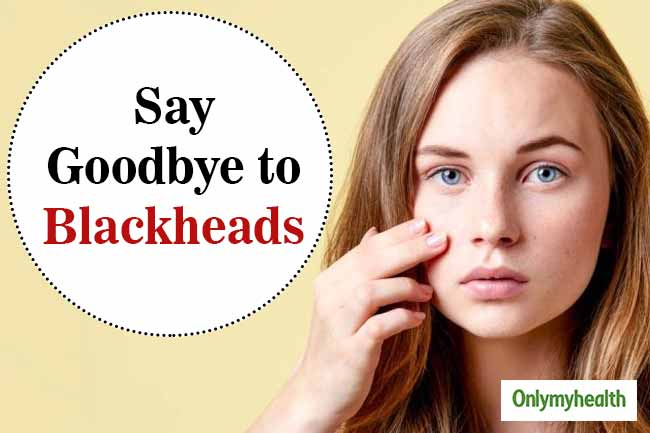 Say goodbye to blackheads