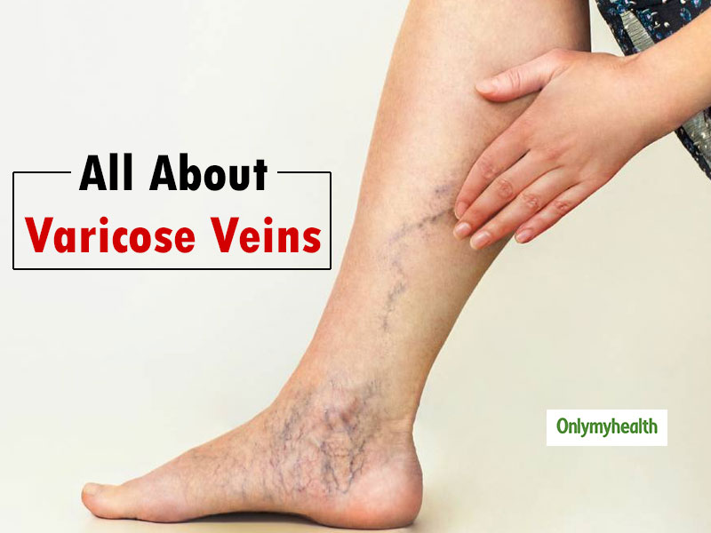 Treat Varicose Veins On Time To Avoid Serious Complications