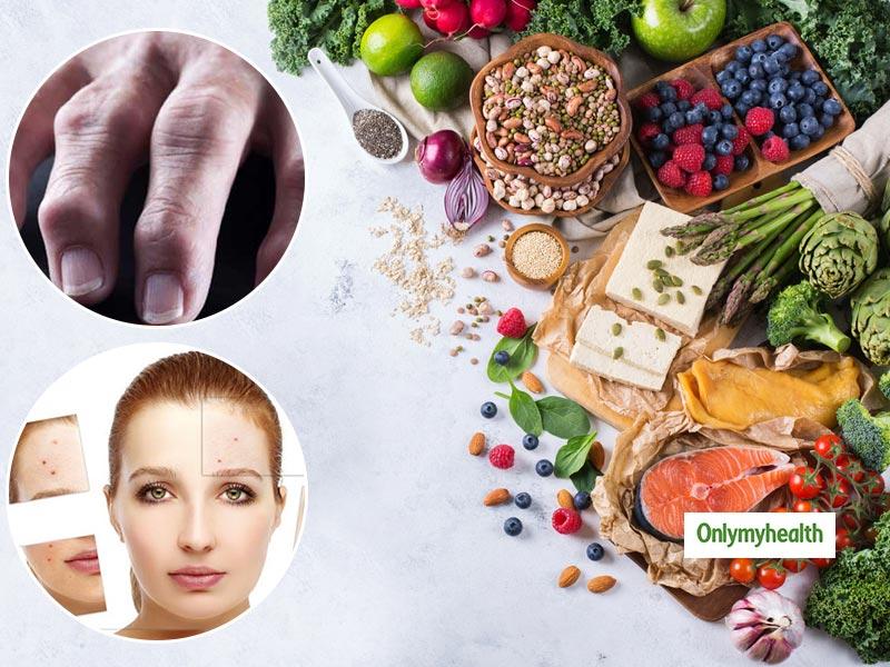 Anti Inflammatory Diet Heal Acne To Rheumatoid Arthritis