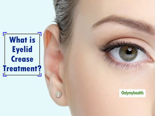 <strong>Eyelid</strong> Crease Treatment: Here's The Complete Guide On It