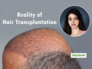 Know The Reality Of <strong>Hair</strong> Transplantation By Dr. Niranjana Raj