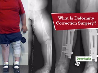 Deformity Correction Surgery: Know Why Is It Required?