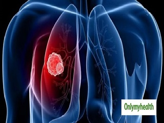 <strong>Lung</strong> Cancer: 5 Things Causing Damage To Your Lungs