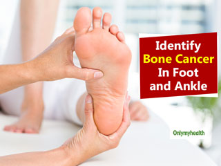 Major <strong>Signs</strong> That Indicate <strong>Bone</strong> <strong>Cancer</strong> in <strong>Foot</strong> and Ankle