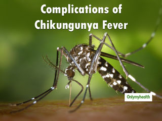 Complications Of <strong>Chikungunya</strong> <strong>Virus</strong> Infection