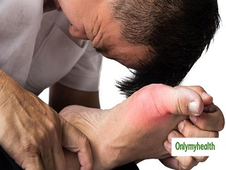 <strong>Suffering</strong> From Gout? Know It's Types And Risk Factors