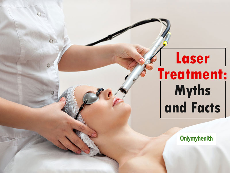 10 Common Myths About Laser Treatment That We All Believe But Aren't True