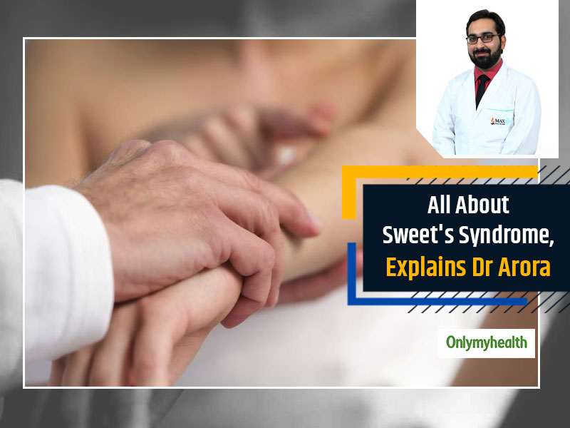 Not So Sweet In Nature, Sweet's Syndrome Is A Rare Skin Disorder, Explains Dr Rahul Arora