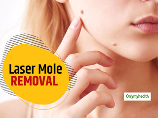 All You Need To Know About Laser Mole Removal