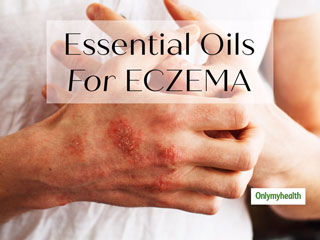 Eczema Care: Essential Oils To Soothe The Irritated Skin