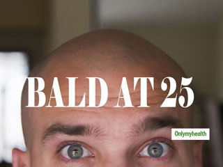 Is It Normal To Go Bald At The Age Of 25? Let's Find Out