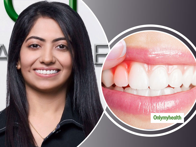 Tips To Deal With Red Swollen Gums By Dr Karishma Jaradi