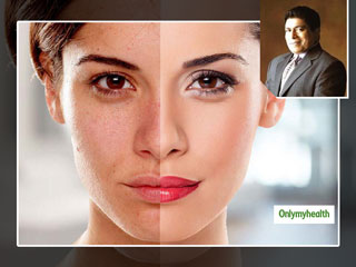 Let's Learn About The Skin Whitening Treatment By <strong>Dr</strong> Mohan Thomas