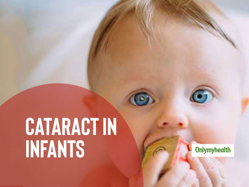 Infants Can Have Cataracts Too, Ensure Regular Eye Check-Up For Them