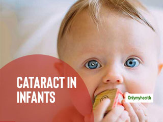 Infants Can Have Cataracts Too, Ensure Regular <strong>Eye</strong> Check-Up For Them