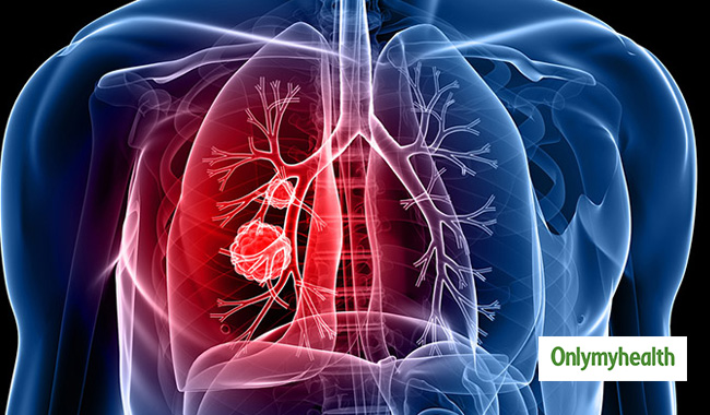 Scientists Develop Biosensor for Early Lung Cancer Diagnosis