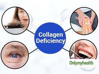 6 Signs that you lack Collagen in your Body