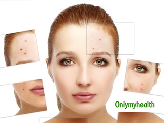 5 Home Remedies to Get Rid of Acne Overnight