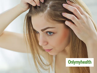 Effective Home Remedies to Treat Dandruff Quickly