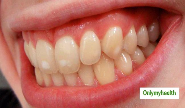 fläckar på tänder