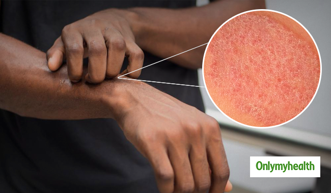 Stay Itch-free with these Home Remedies for Fungal Infection