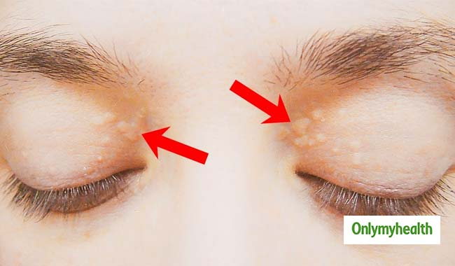 Yellowish Lumps Around The Eyes? High Cholesterol Maybe The Reason
