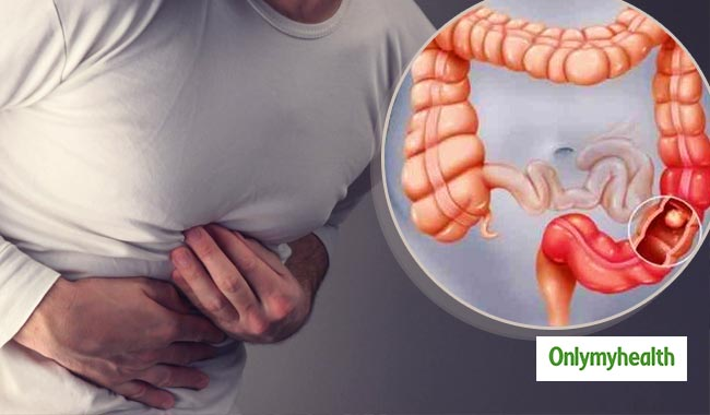 Symptoms of Colon Cancer Young Men Shouldn't Ignore