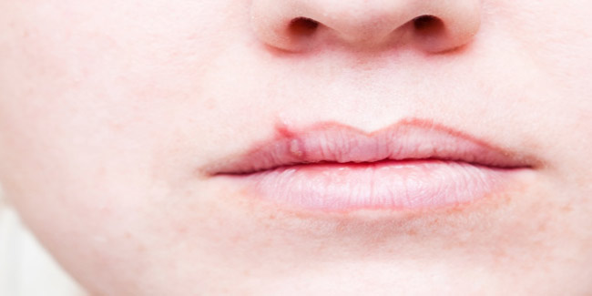 How to Prevent a Cold Sore When You Feel it coming | Other