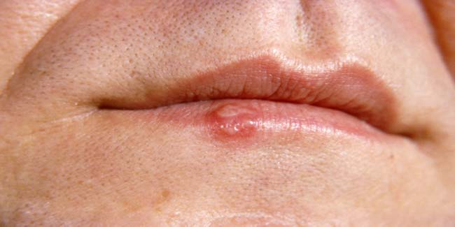 How to Prevent a Cold Sore When You Feel it coming | Other Diseases