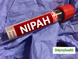 Nipah <strong>Virus</strong>: A New Zoonotic Challenge