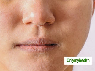 Causes Of <strong>Dry</strong> <strong>Skin</strong> Around The Mouth